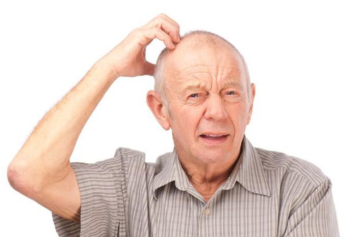 Một số dấu hiện về bệnh mất trí nhớ ở người già bạn nên biết