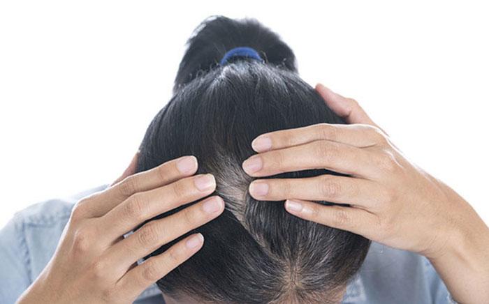 Người già thường có sự thay đổi nhiều về tóc